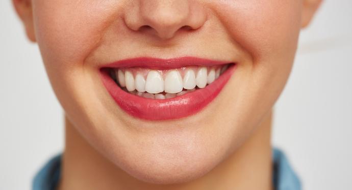 Come sbiancare i denti